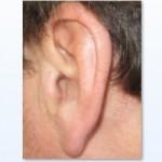 Symptom Pfeifen im Ohr , was tun?