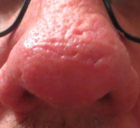 Eine über Jahre von Rosacea  gezeichnete Nase